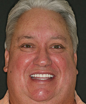 Closeup of a male patient of Beyond Exceptional Dentistry after treatment