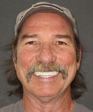 Closeup of a male dental patient's smile after cosmetic treatment with Beyond Exceptional Dentistry