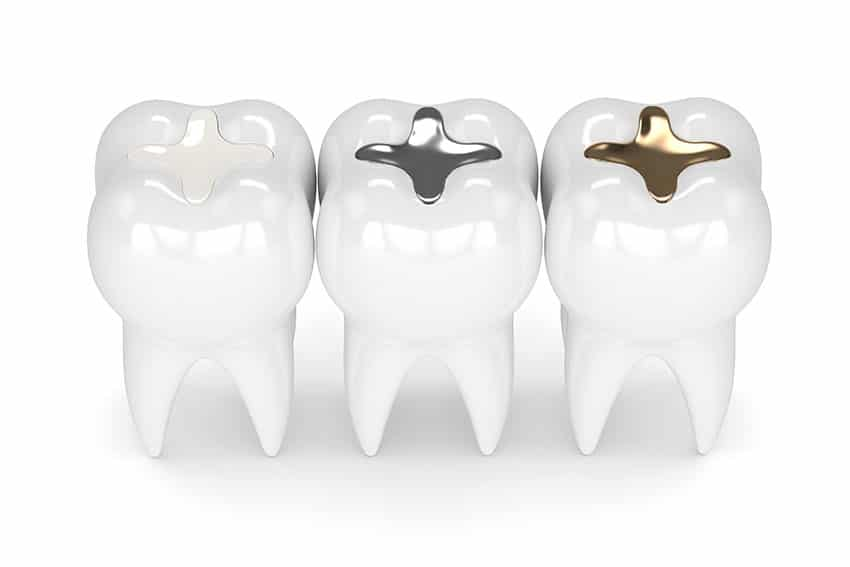 3 large teeth showing stages of fillings
